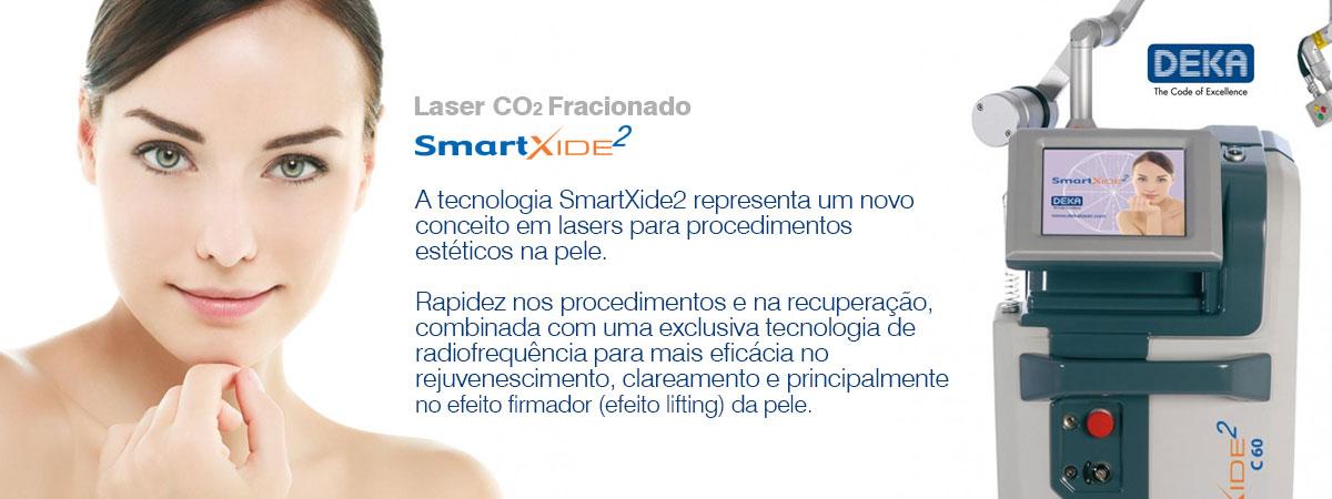 banner-laser-co2-001-1