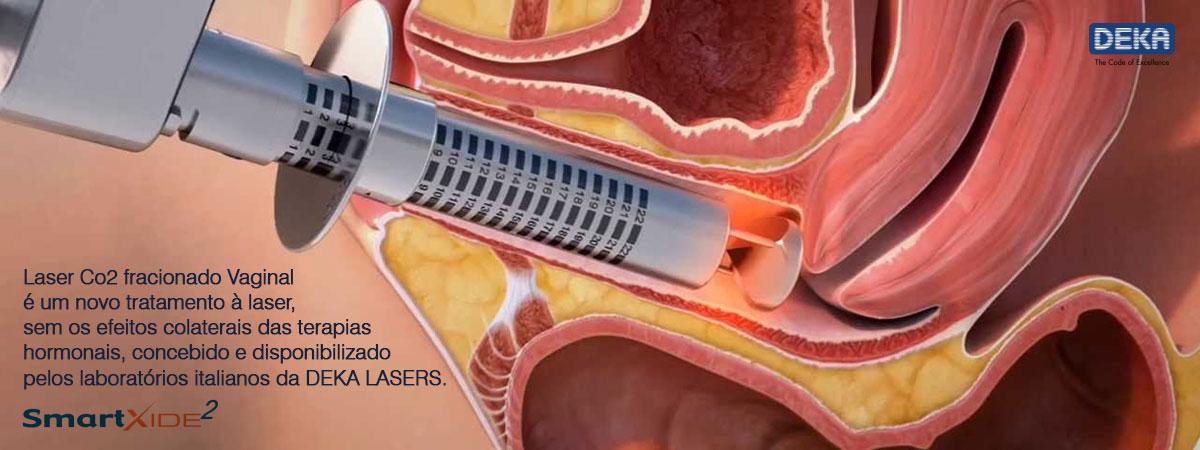 banner-laser-co2-vaginal006
